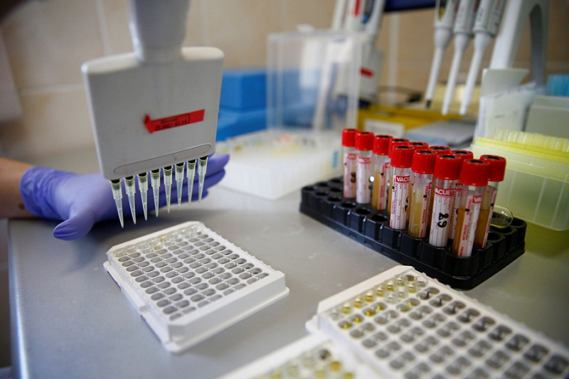 В Краснодарском крае выздоровели более 74% больных коронавирусом